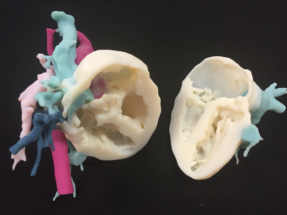 3D medical printing finds its footing in Dubai's future